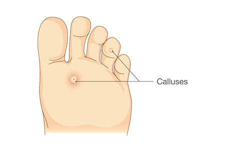 Common foot problems - corns and calluses