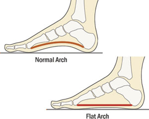 Common foot problems - fallen arches and flat feet