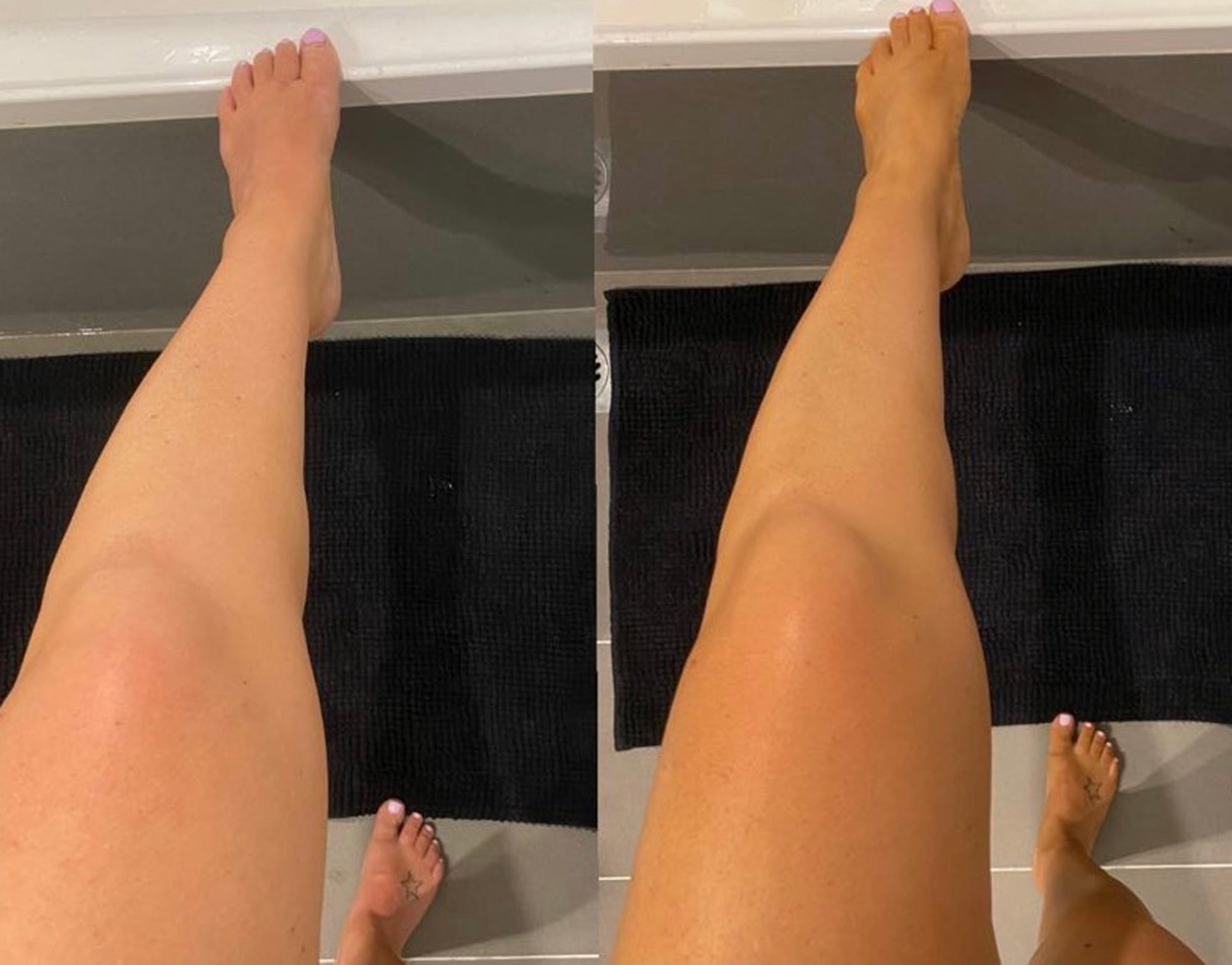 Dark Before and After Fake Tan Pictures - Byron Bay Bronze Before and After Tan