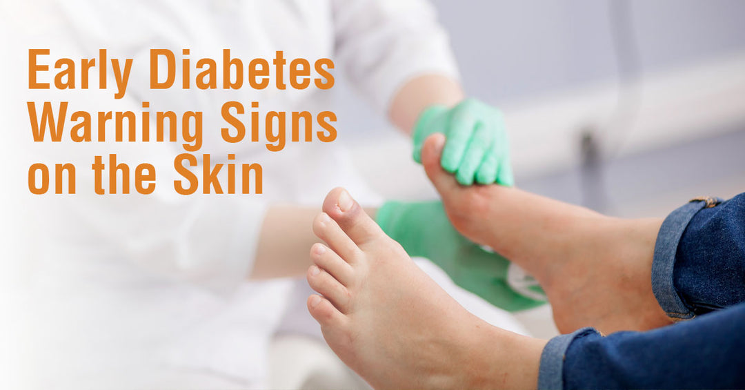 Early Diabetes Warning Signs on the Skin