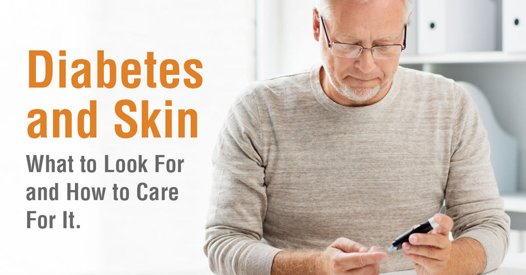 Diabetes and Skin -  What to Look For and How to Care For It.