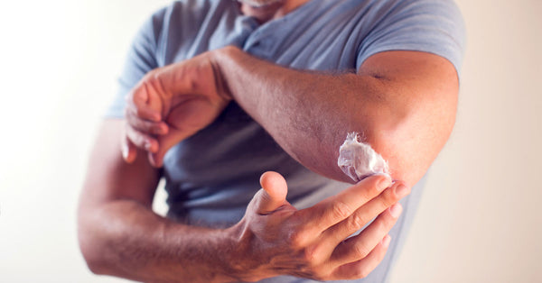 Man rubbing moisturizer into elbow