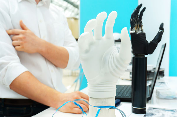Microprovessor Prosthetic Arm