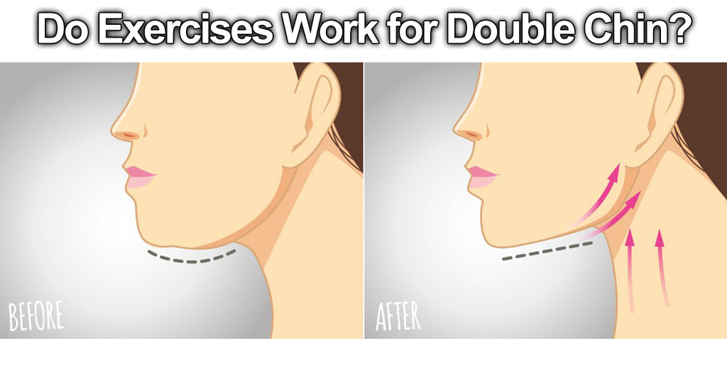 Do Exercises Work for Double Chin?