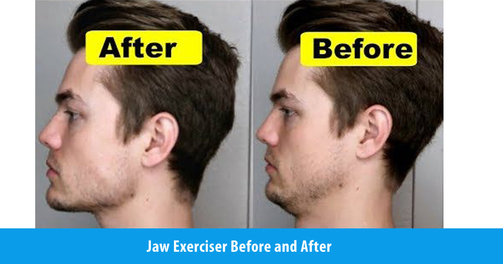 Jaw Exerciser Before and After-What to Expect