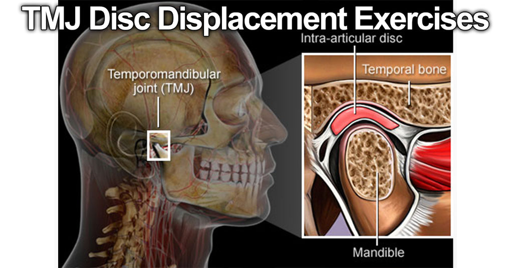 TMJ Disc Displacement Exercises