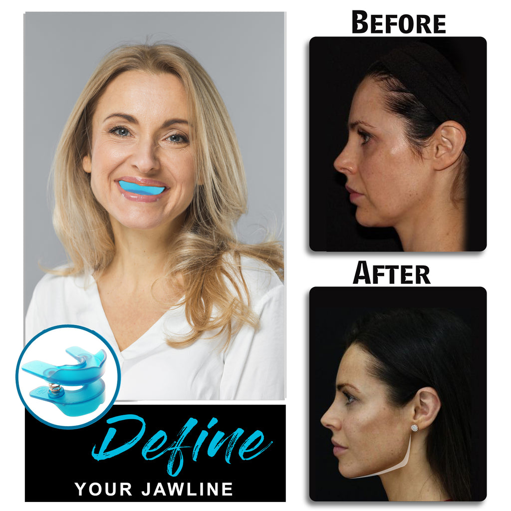 Facial Exerciser - Facial Muscles Exercise Device