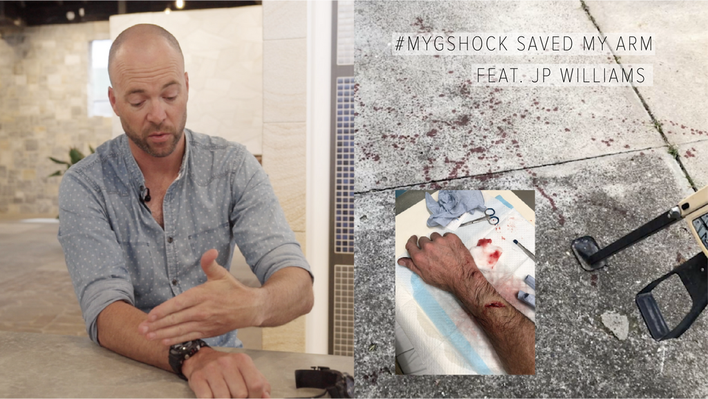 #MYGSHOCK SAVED MY ARM Feat. JP Williams