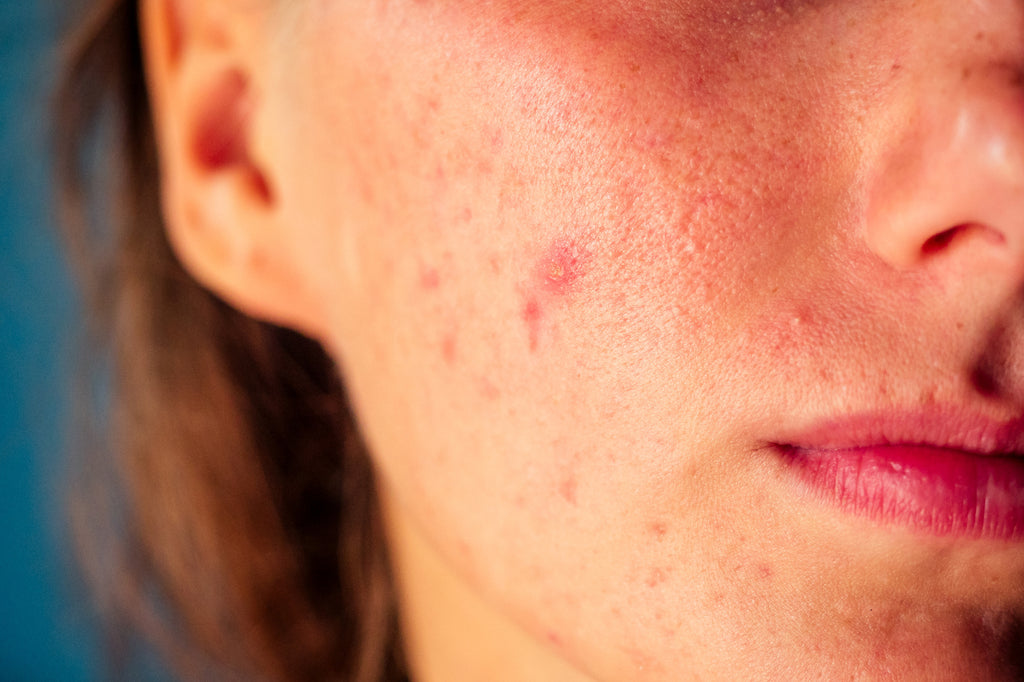 How to Fight Chronic Acne Breakouts?