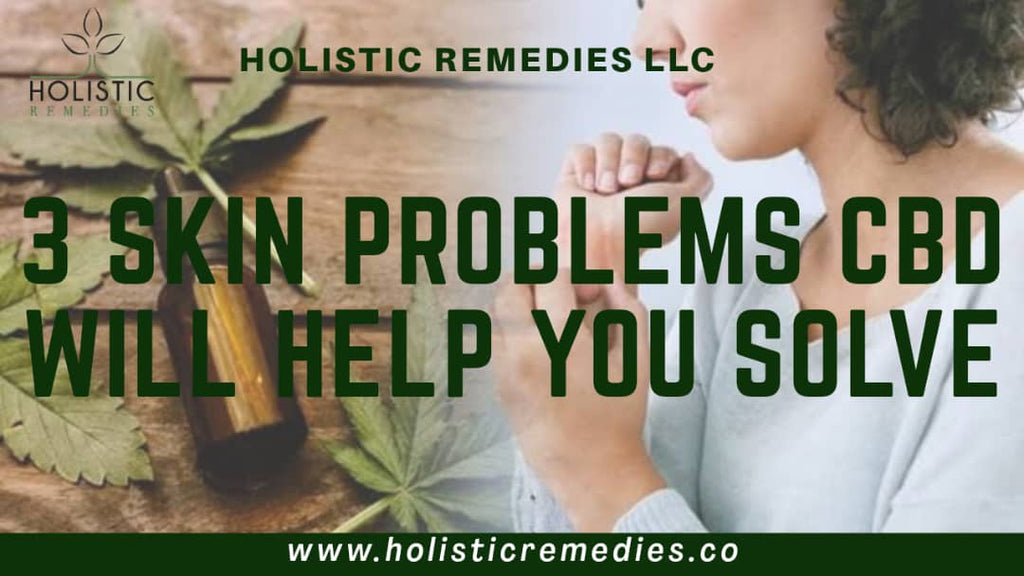 3 Skin Problems CBD Will Help You Solve