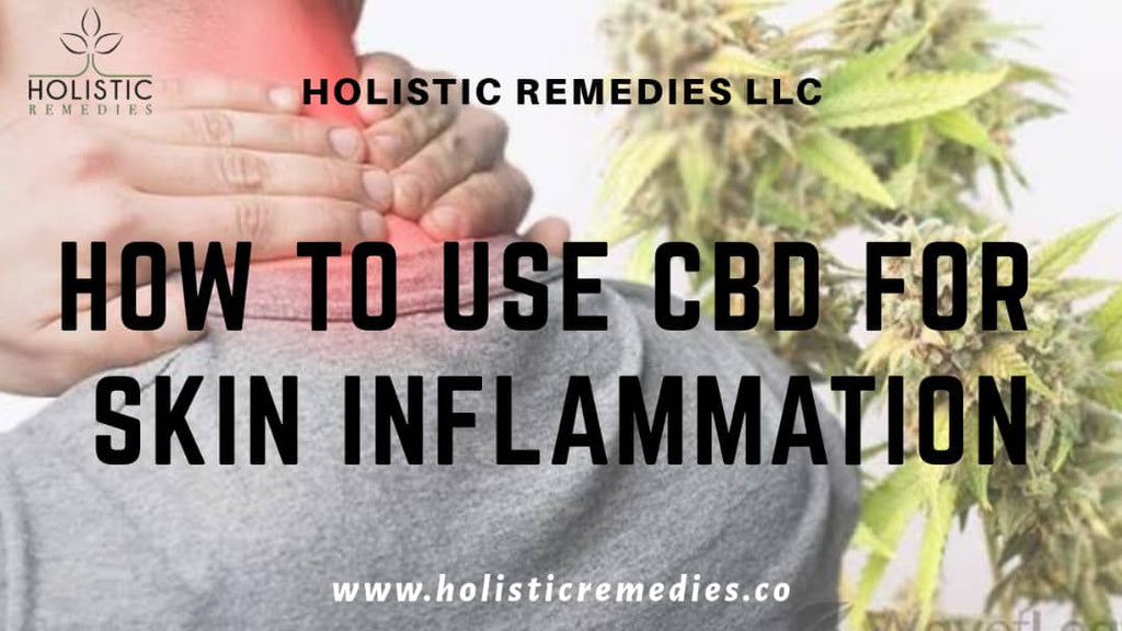 How to Use CBD for Skin Inflammation