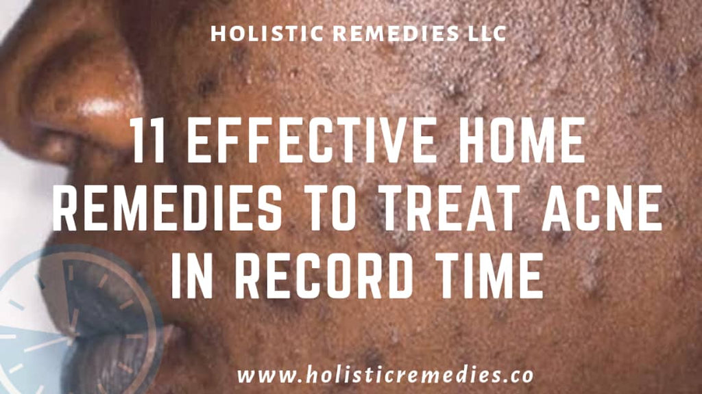 11 Effective Home Remedies to Treat Acne in Record Time