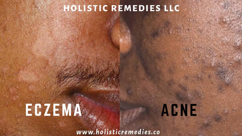 How is eczema different from acne? Eczema and acne