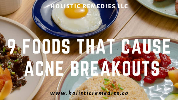the foods that cause or increase risk of acne