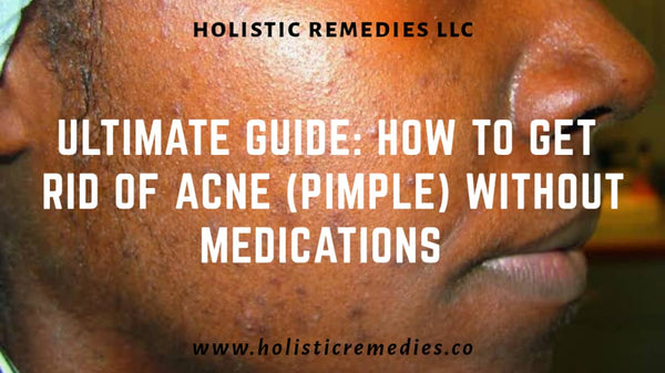 get rid of acne without mediations or delay