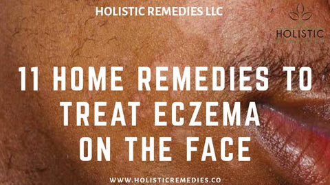 eczema on black facial skin