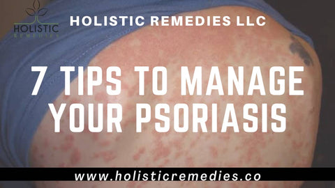 7 tips to manage your psoriasis