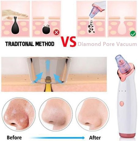 Diamond Pore Vacuum | ADOGADGETS