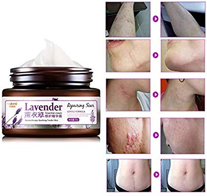 VIAVIC Lavender Scar And Stretch Marks Repair Cream | Lavender Essential Cream