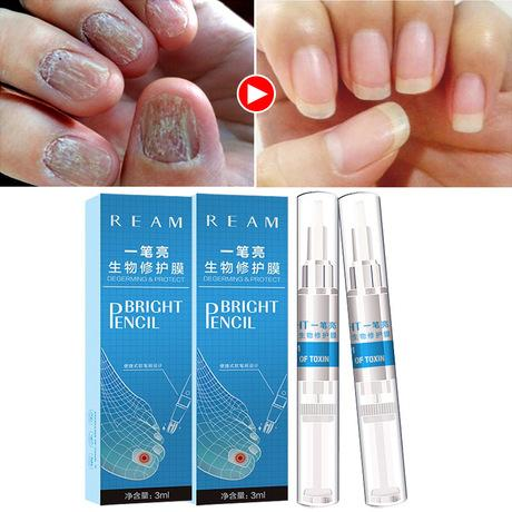 Nails Germs Treatment Oil | Nails Cleaning And Whitening Solution - Ginax Store
