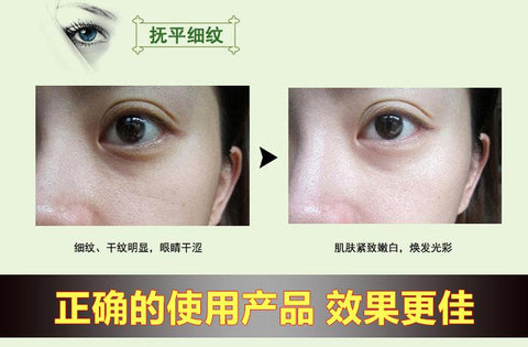 Eye Bags And Dark Circles Treatment Oil | Eye Skin Revitalizing Lotion - Ginax Store
