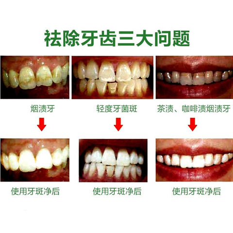Image of Teeth Germs Healing Powder | Teeth Cleaning And Whitening Powder - Ginax Store