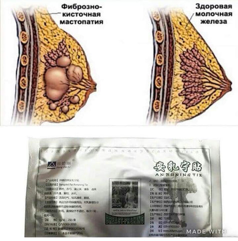 Image of BANGDELI Breast Pain Relief Patch | Breast Lump Healing Plaster | Breast Swelling Relief Patch