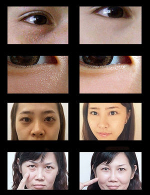 Eye Bags And Dark Circles Treatment Oil | Eye Skin Revitalizing Lotion