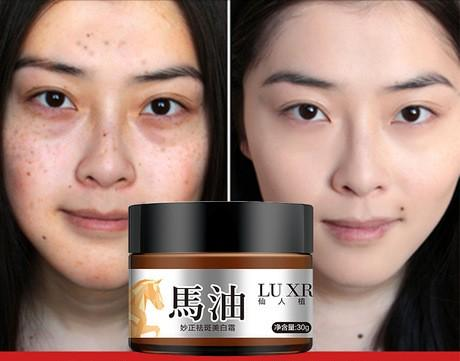 Dark Spots And Wrinkles Removal Cream | Facial Spots And Wrinkles Treatment Oil - Ginax Store