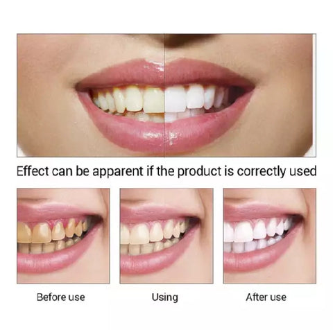 LANBENA Teeth Whitening Essence | Teeth Stains Removal Powder