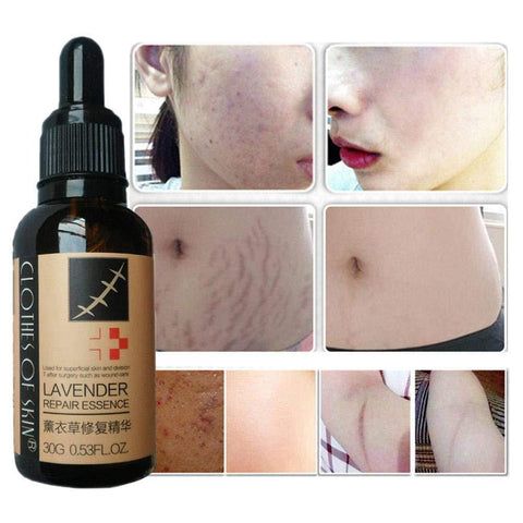 Lavender Skin Repair Essence | Stretch Mark And Scar Removal Oil - Ginax Store