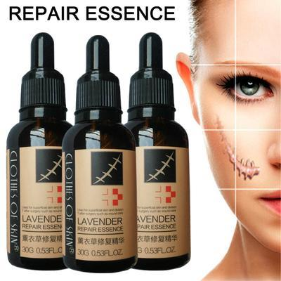 Image of Lavender Skin Repair Essence | Stretch Mark And Scar Removal Oil - Ginax Store