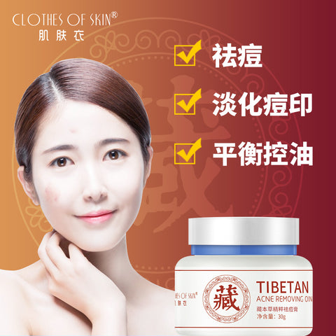 Tibetan Acne Removal Cream | Facial Oil Control Cream