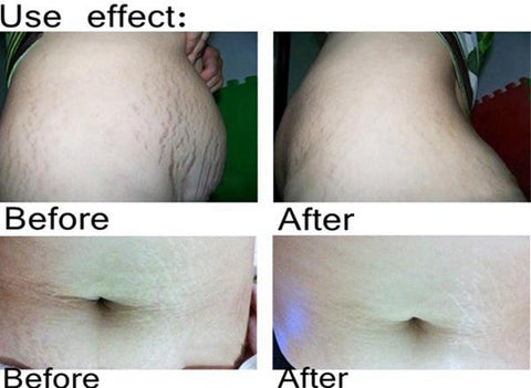 Stretch Mark Repair Creams | Stretch Marks Removal Oil - Ginax Store