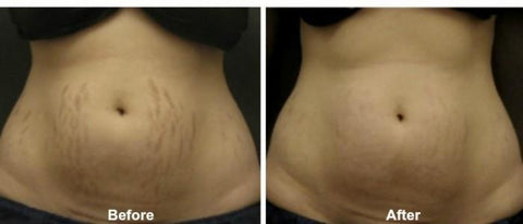 Image of Stretch Mark Repair Creams | Stretch Marks Removal Oil - Ginax Store