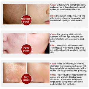 Blackhead Dissolving Serum Solution - Pores Shrinking Serum - OptimalDealz