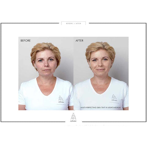products/multi-vitamin-super-cream-before-after.jpg