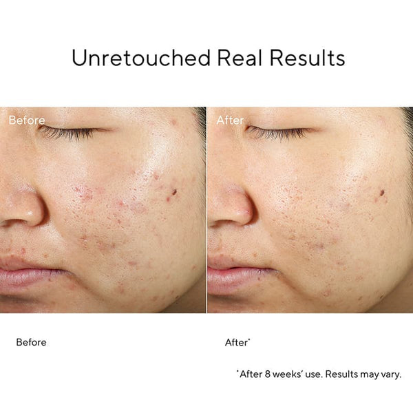 Murad InvisiScar Before & After | Spot & Blemish Scar Treatment