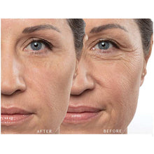 products/remescar-instant-wrinkle-corrector-before-after-600x600.jpg