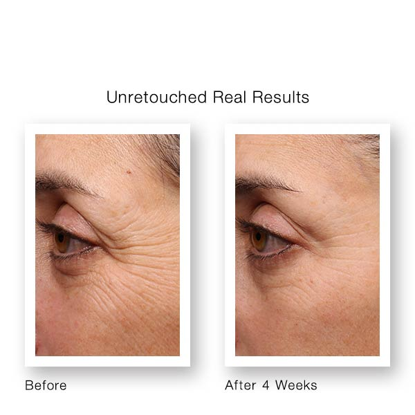 Murad Resurgence Retinol Youth Renewal Eye Serum Before & After