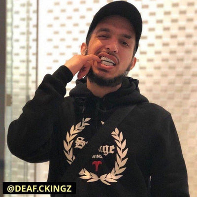 18k White Gold Plated ICED Grills, grills shown being worn by @deaf.ckingz, best out