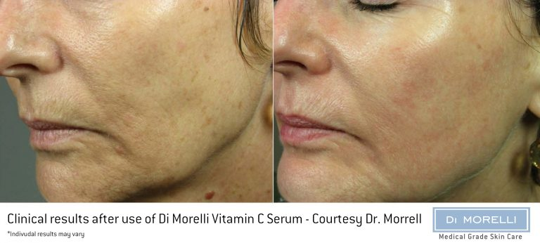 Di Morelli Vitamin C Serum Results