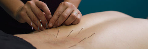 acupuncture-miami-beach