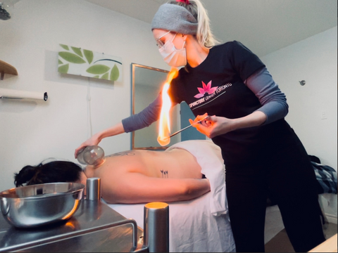 ACT-fire-cupping