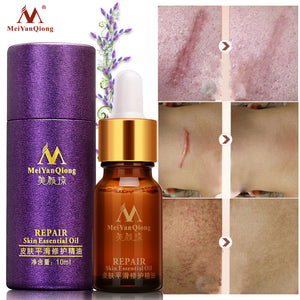 Scar Repair Essential Oil Lavender