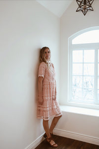 Lace Button-Up Dress