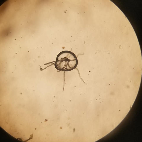 nematodes under the microscope