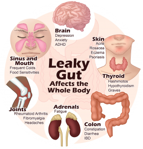 7 Supplements for Healing Your Leaky Gut