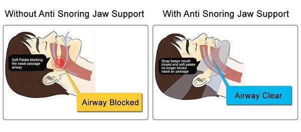 Anti Snore Stop Snoring Chin Strap Device Solution Anti Apnea Sleep Support Sleeping Care