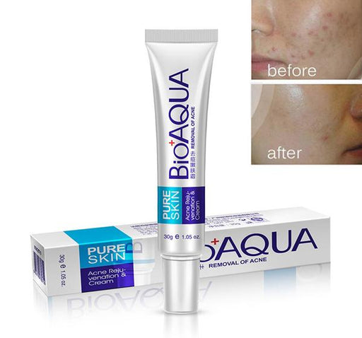 BioAQUA Face Acne Scars Treatment Cream - Hiffey